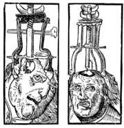 180px-Peter_Treveris_-_engraving_of_Trepanation_for_Handywarke_of_surgeri_1525