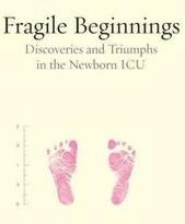 Fragile (3)