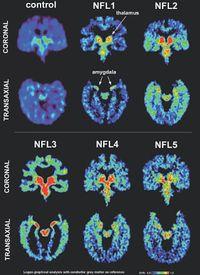 Brain porn NFL